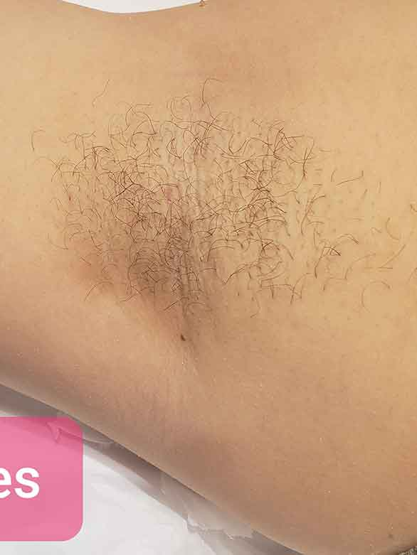 women's armpit waxing in Reseda, CA