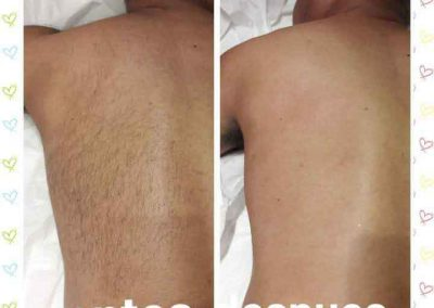men's back waxing before and after pic