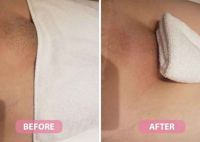 women's brazilian waxing before and after image