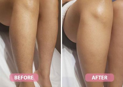 women legs waxing before and after pic