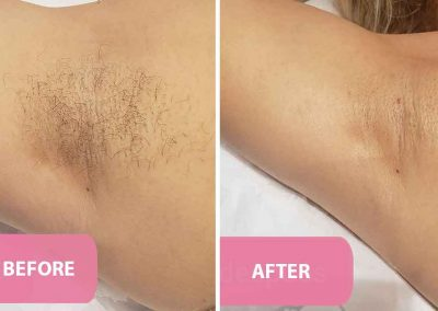 women's underarm waxing before and after pic