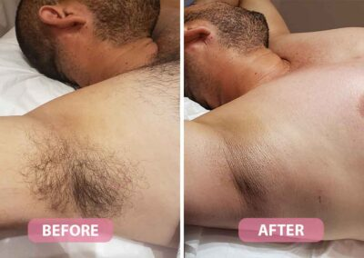 men's underarm waxing